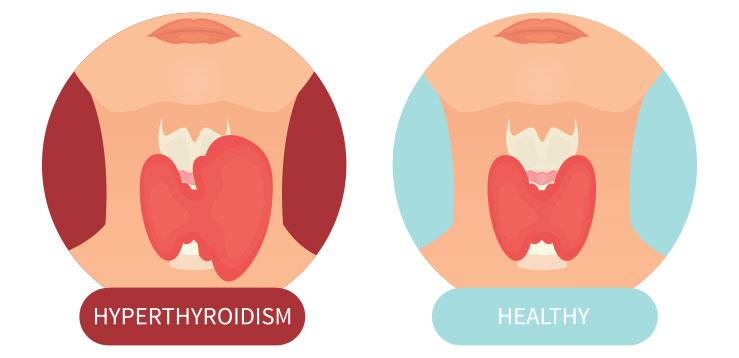 Гипертиреоз против здоровой щитовидной железы