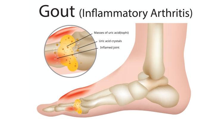 Diagram Of Arthritis Gout