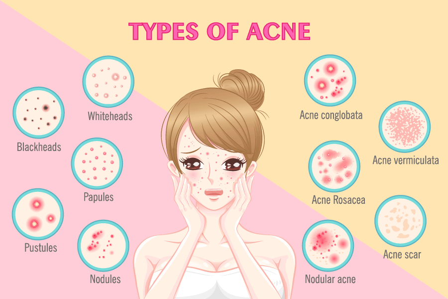 9 Best Supplements For Managing Acne