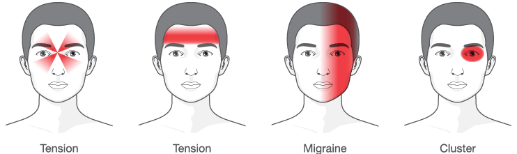 Diagram Of The Different Types Of Headaches